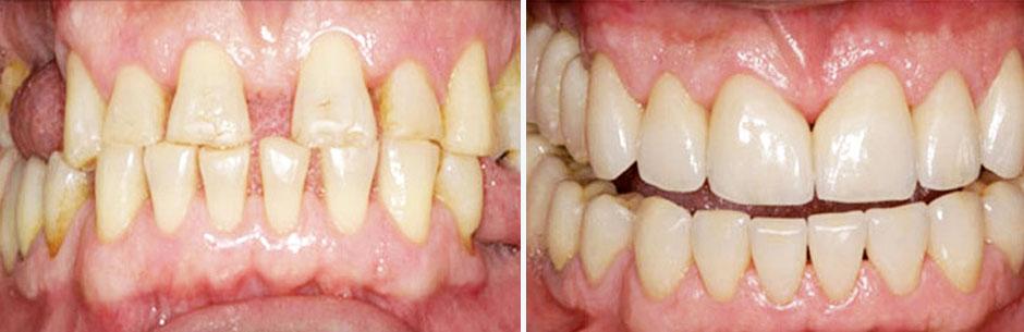 reabilitacao-oral-com-ortodontia